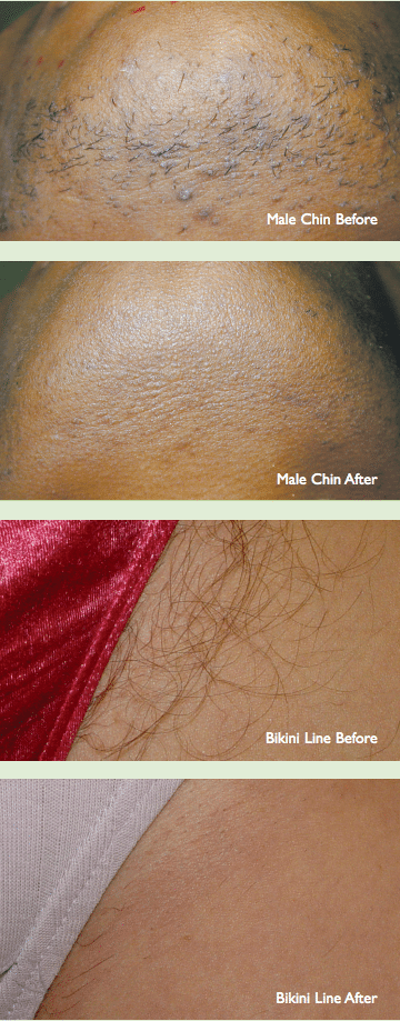 Laser Hair Removal - Long Term Results - Dr G Marks - Pretoria-4660