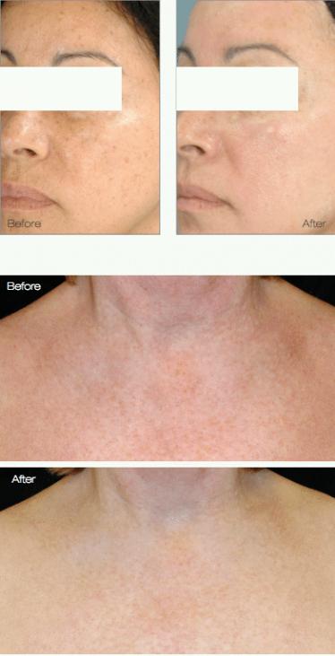 Treat red skin, tiny veins, brown spots, sun damage - Dr