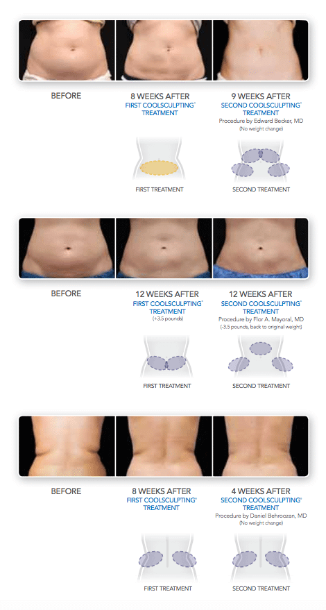 The body sculpting process available from Dr G Marks.