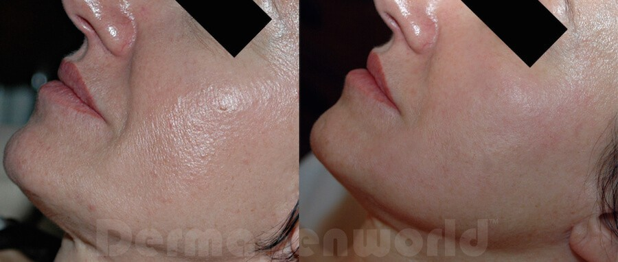 Removal of Skin Marks by Dr Genevieve Marks