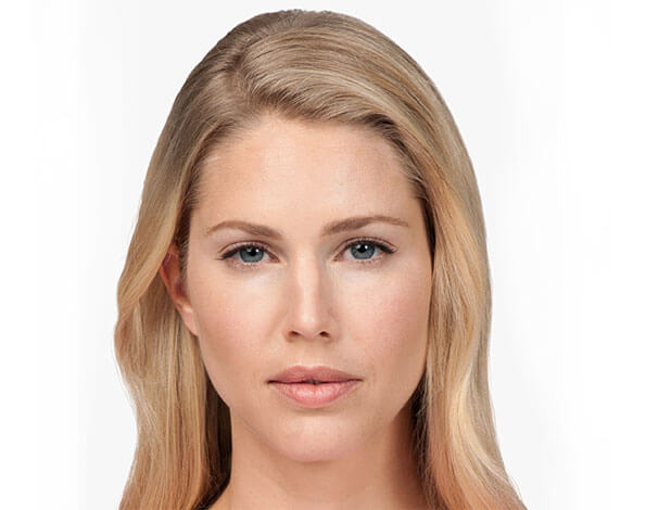 Botox after - Lady - Dr G Marks