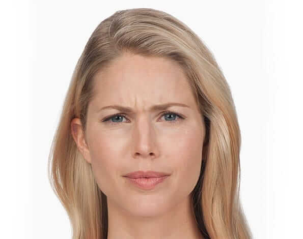 Botox before - Lady - Dr G Marks
